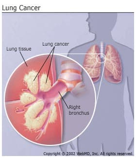 lung cancer introduction pdf